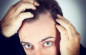 pic of dandruff  - Caucasian young man controls hair loss on white background - JPG