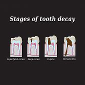 foto of gingivitis  - Stages of development of dental caries - JPG
