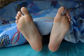 image of callus  - Female feet with callus under the blue blanket - JPG