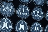 stock photo of ct scan  - research in medicine - JPG